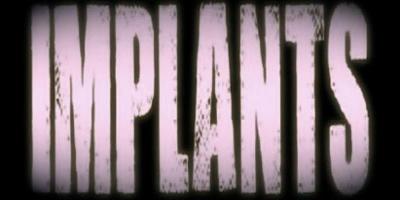 Implants Logo